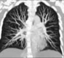 CT Scanning of the Chest